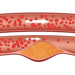 Атеросклероза