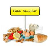 Хранителни алергии (1)