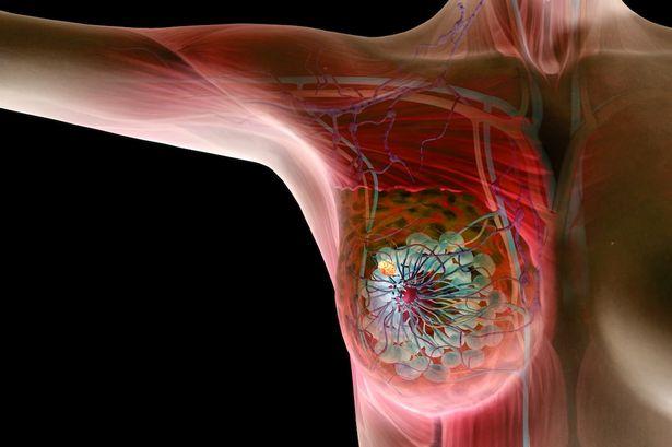 Best Agaricus Blazei на изгодна цена помага при различни видове рак и противодейства при възпаления и инфекции